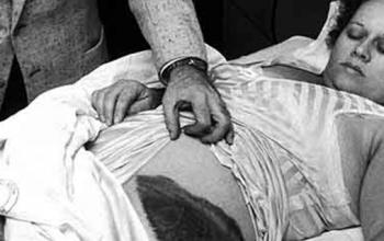 La sfortunata storia di Ann Hodges e del meteorite che la colpì