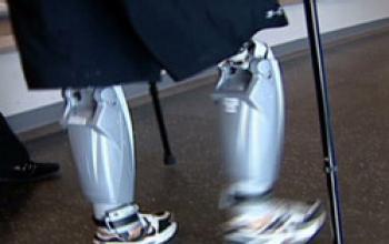Il Bluetooth e le gambe robotiche