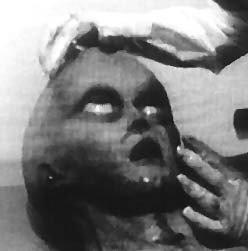 Foto tratta dal video della seconda autopsia di Roswell. (2)