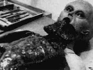 Foto tratta dal video della seconda autopsia di Roswell. (4)